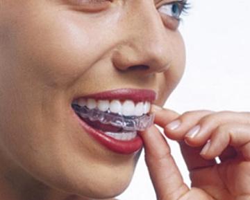 unsichtbare Schiene bei Zahnfehlstellungen
