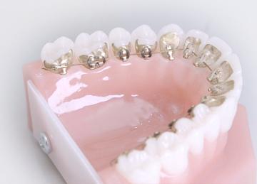 Incognito - unsichtbare Zahnspange